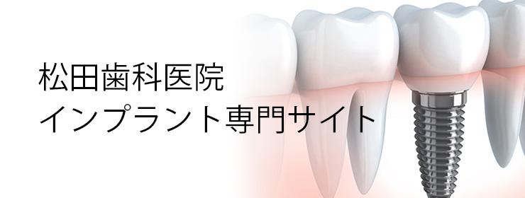 松田歯科医院のインプラント専門サイト