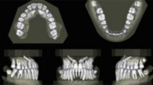 奈良・宇陀市の松田歯科医院の歯科用CTでは見えない物が見える様になります