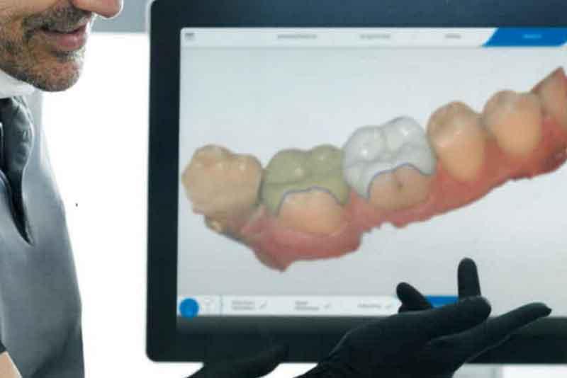 セレックで白い歯を作成するための説明